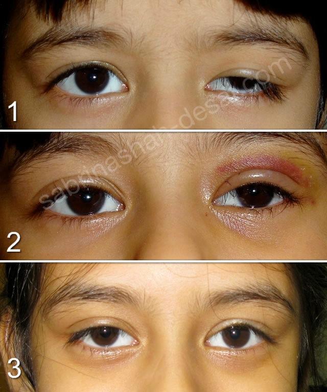 Scarless Ptosis Surgery Londons Leading Cosmetic Eye Surgeon